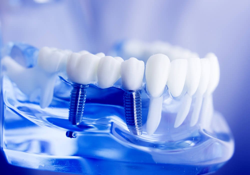 implant bridge available at The Tooth Place