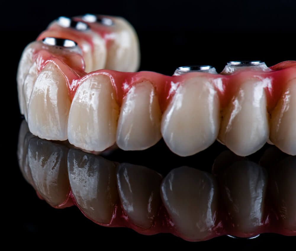 All on 4 denture procedure available at The Tooth Place