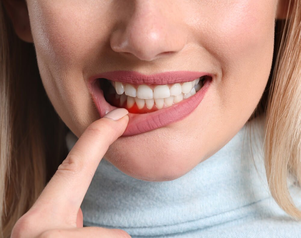 Periodontitis gum disease treated at the tooth place